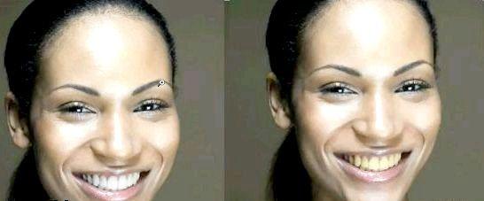 Фото - Білі зуби в фотошопі або як відбілити зуби своїми руками