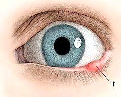 Фото - Ячмінь на оці. Причини і способи лікування