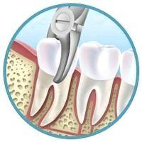 Як доглядати за порожниною рота після видалення зуба