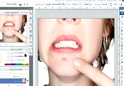 Як Прибрати прищі за допомогою фотошопу